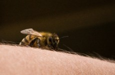 What's the worst place to be stung by a bee? This student has found out…