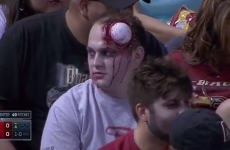 No doubt about it, this guy was the clear winner of Zombie Night
