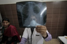 As TB re-emerges, a link is found to low vitamin D in children