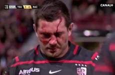 Fritz fiasco a stark reminder that rugby needs ongoing concern around head injuries