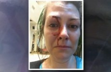 Facebook pic helps police capture man who punched woman in the face