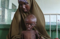 Nearly 800,000 children in Somalia face immediate death