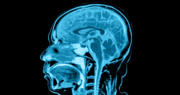 12 month delays for MRI scans 'putting lives at risk'