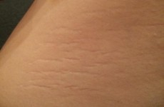 Women are celebrating their stretch marks with the inspiring #ThighReading hashtag