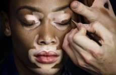 Is copying this model's skin condition racist?