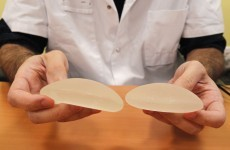 Concern that Irish women could be affected by faulty breast implants