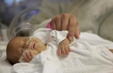 US hospital prepares to send tiny baby home