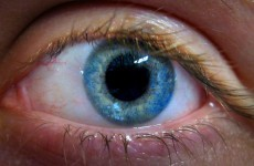 One person with diabetes goes blind each week in Ireland – Diabetes Action