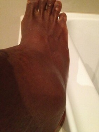 Here's what Serena Williams' ankle looked like after she got upset by Sloane Stephens