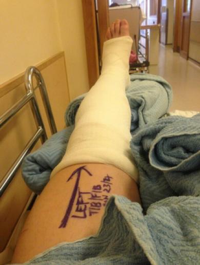 Extent of Cork's Paudie O'Sullivan injury confirmed – broken fibula and tibia