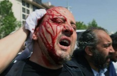 Turkey: Deputy PM apologises for violence against protesters
